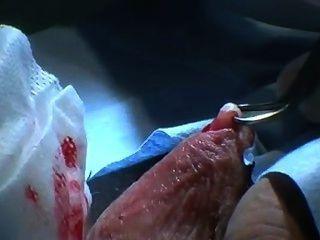 australian Vasektomie auf ungeschnitten männlich - prep, rasieren, Training Band