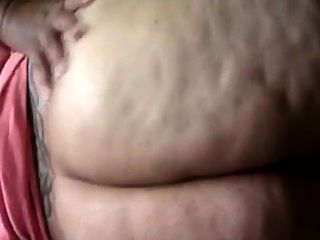 Fett Cellulite Hintern
